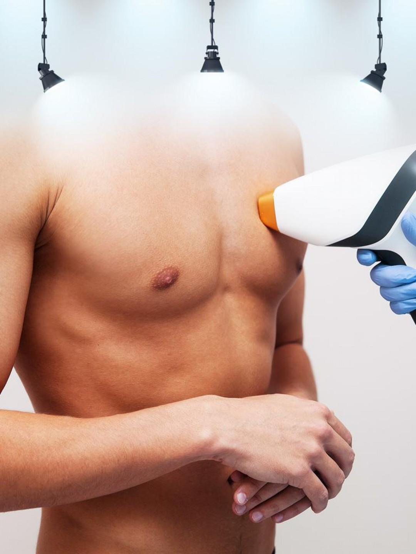 14 Seans Erkek Epilasyon - Komple Göğüs