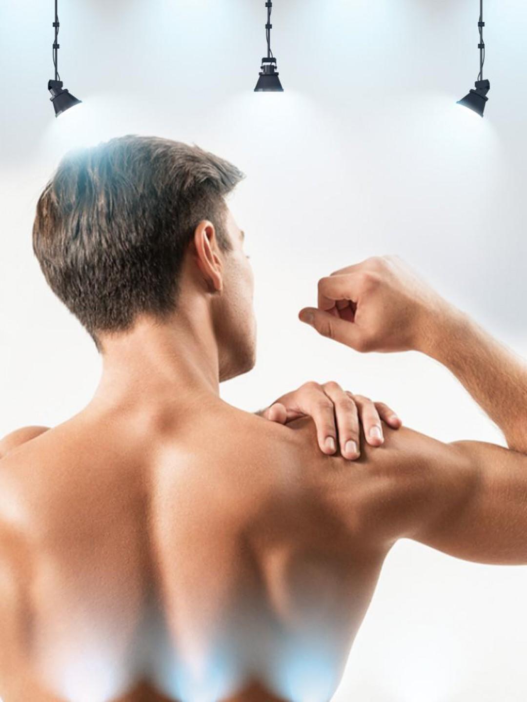 14 Seans Erkek Sırt Epilasyon